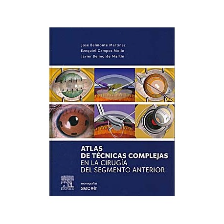 ATLAS DE TECNICAS COMPLEJAS EN LA CIRUGIA DEL SEGMENTO ANTERIOR (MONOGRAFIAS SECOIR)