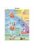 ALERGIAS (VR-3660)