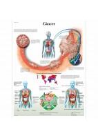 CANCER (VR-3753)