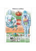 DIABETES MELLITUS (VR-3441)