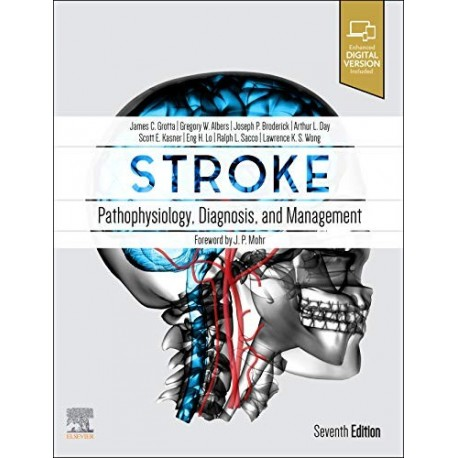 STROKE. PATHOPHYSIOLOGY, DIAGNOSIS AND MANAGEMENT (DIGITAL VERSION INCLUDED)