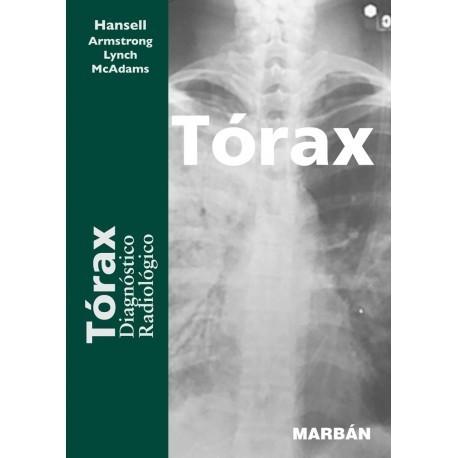 TORAX. DIAGNOSTICO RADIOLOGICO DE RESIDENTE 17