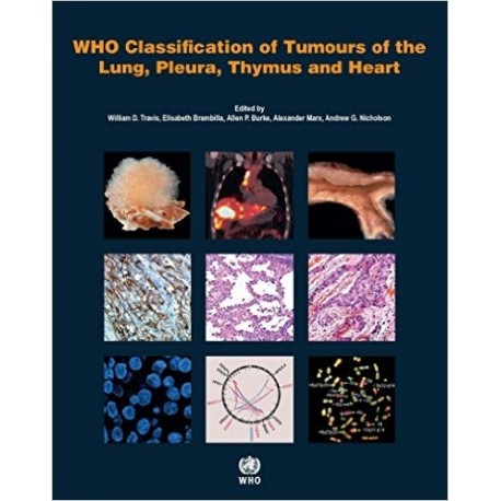 WHO CLASSIFICATION OF TUMOURS OF THE LUNG PLEURA THYMUS AND HEART