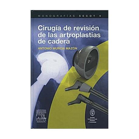 CIRUGIA DE REVISION DE LAS ARTROPLASTIAS DE CADERA