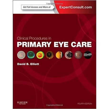 CLINICAL PROCEDURES IN PRIMARY EYE CARE (EXPERT CONSULT: ONLINE AND PRINT)