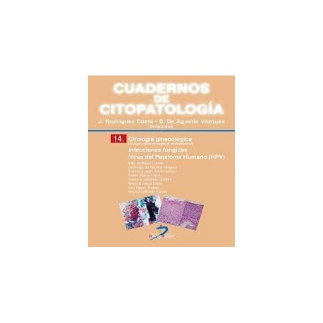 CUADERNOS DE CITOPATOLOGIA 14 (CITOLOGIA GINECOLOGICA.INFECCIONES FUNGICAS. VIRUS DEL PAPILOMA HUMANO)