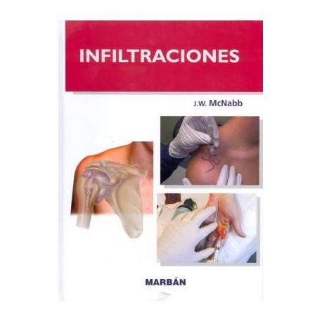 INFILTRACIONES