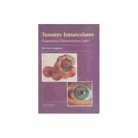 TUMORES INTRAOCULARES. DIAGNOSTICO DIFERENCIAL EN COLOR