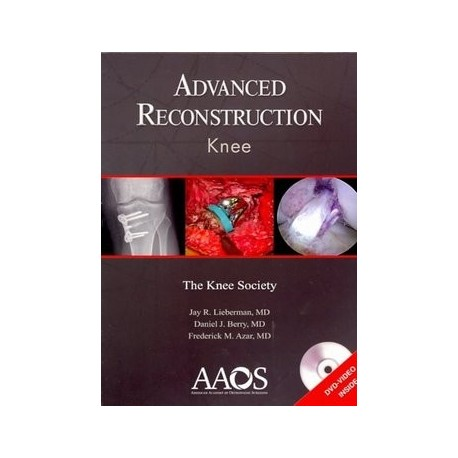 ADVANCED RECONSTRUCTION KNEE + DVD