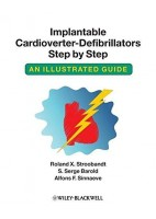 IMPLANTABLE CARDIOVERTER-DEFIBRILLATORS STEP BY STEP AN ILLUSTRATED GUIDE