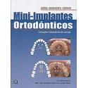 MINI-IMPLANTES ORTODONTICOS
