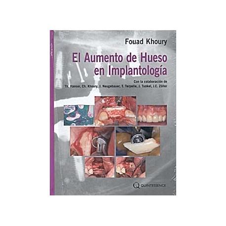 EL AUMENTO DE HUESO EN IMPLANTOLOGIA