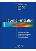 HIP JOINT RESTORATION