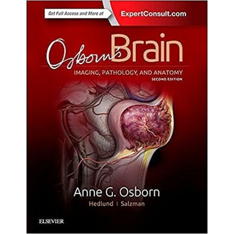 OSBON'S BRAIN. IMAGING, PATHOLOGY AND ANATOMY