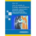 ATLAS DE BOLSILLO DE CORTES ANATOMICOS TOMOGRAFIA COMPUTARIZADA Y RESONANCIA MAGNETICA (VOL.3) COLUMNA VERTEBRAL, EXTREMIDADES Y ARTICULACIONES