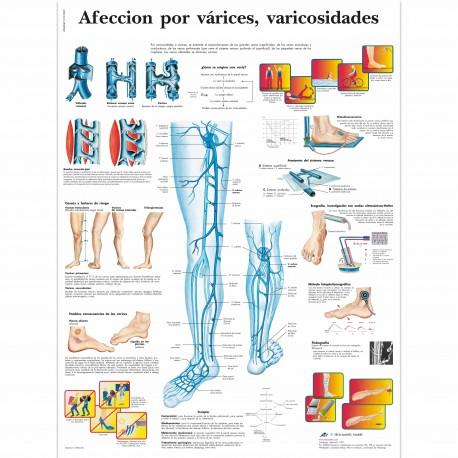 AFECCION POR VARICES (VR-3367)