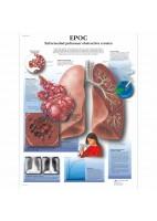 EPOC (VR-3329)