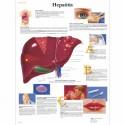 HEPATITIS (VR-3435)
