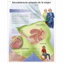 INCONTINENCIA URINARIA DE LA MUJER (VR-3542)