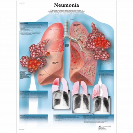 NEUMONIA (VR-3326)