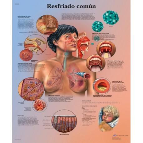 RESFRIADO COMUN (VR-3253)