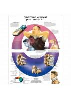 SINDROME CERVICAL POSTRAUMATICO (VR-3761)