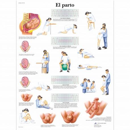 EL PARTO (VR-3555)