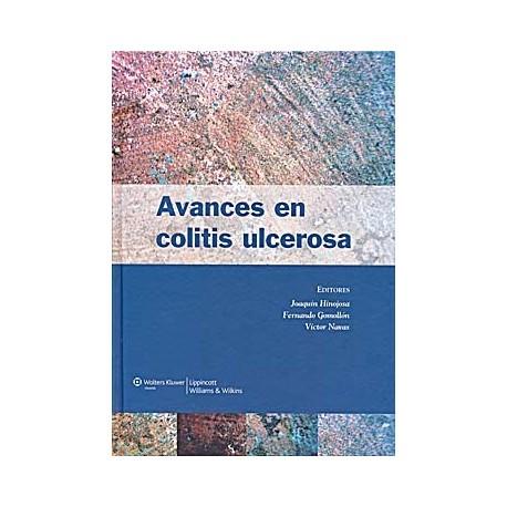 AVANCES EN COLITIS ULCEROSA