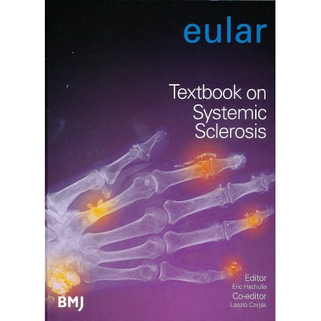 EULAR TEXTBOOK ON SYSTEMIC SCLEROSIS