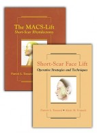 SHORT-SCAR RHYTIDECTOMY - TWO VOLUME SET