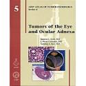 TUMORS OF THE EYE AND OCULAR ADNEXA Nº 5 SERIE-4