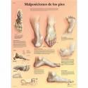 MALPOSICIONES DE LOS PIES (VR-3185)