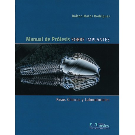MANUAL DE PRÓTESIS SOBRE IMPLANTES
