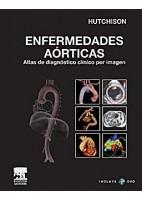 ENFERMEDADES AORTICAS. ATLAS DE DIAGNOSTICO CLINICO POR IMAGEN + DVD-ROM