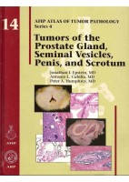 TUMORS OF THE PROSTATE GLAND, SEMINAL VESICLES, PENIS, AND SCROTUM: 14 (AFIP ATLAS OF TUMOR PATHOLOGY)