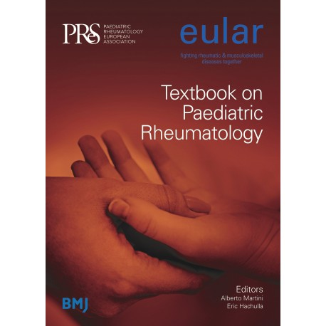 EULAR TEXTBOOK ON PAEDIATRIC RHEUMATOLOGY