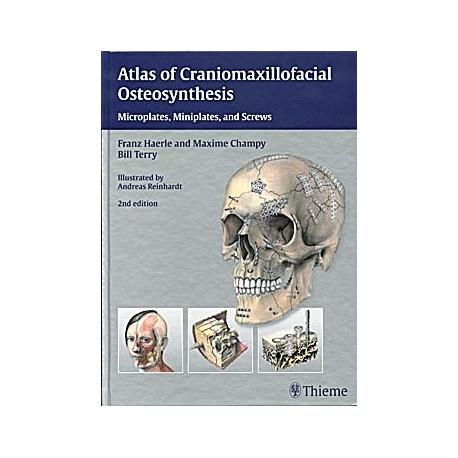 ATLAS OF CRANIOMAXILLOFACIAL OSTEOSYNTHESIS. MICROPLATES, MINIPLATES, AND SCREWS