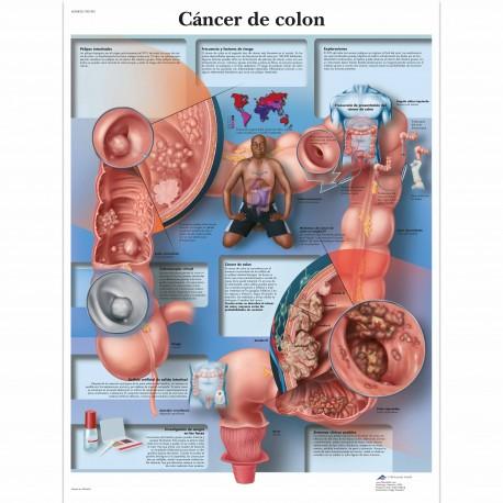 CANCER DE COLON (VR-3432)