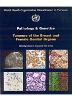 PATHOLOGY AND GENETICS TUMOURS OF THE BREAST & FEMALE GENITAL ORGANS