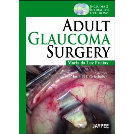 ADULT GLAUCOMA SURGERY + 2 DVD