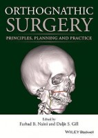 ORTOGNATHIC SURGERY. PRINCIPLES, PLANNING AND PRACTICE
