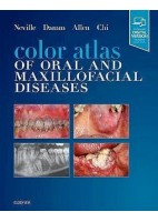 COLOR ATLAS OF ORAQL AND MAXILLOFACIAL DISEASES (PRINT AND ONLINE)