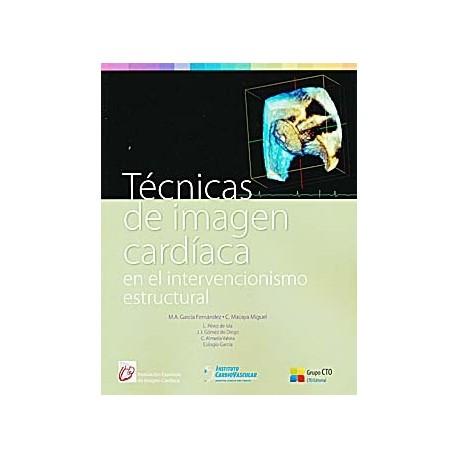 TECNICAS DE IMAGEN CARDIACA EN EL INTERVENCIONISMO ESTRUCTURAL
