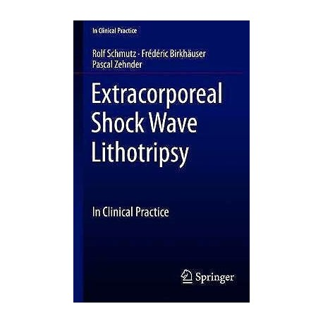 EXTRACORPOREAL SHOCK WAVE LITHOTRIPSY. CLINICAL PRACTICE