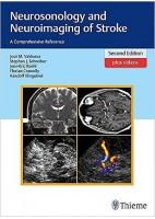 NEUROSONOLOGY AND NEUROIMAGING OF STROKE + VIDEOS