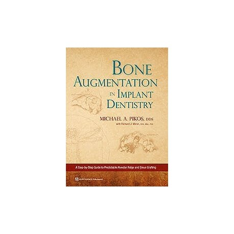 BONE AUGMENTATION IN IMPLANT DENTISTRY