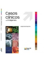 CASOS CLINICOS EN IMAGENES