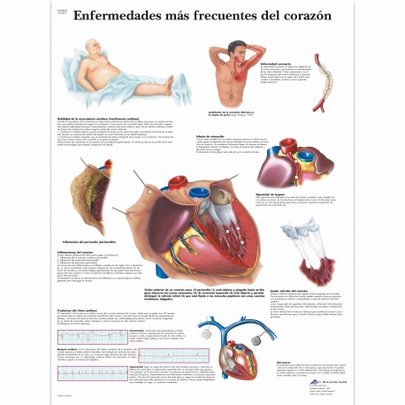 ENFERMEDADES MAS FRECUENTES DEL CORAZON (VR-3343)