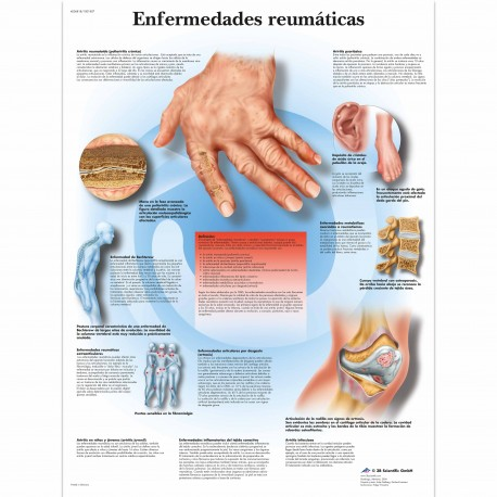 ENFERMEDADES REUMATICAS (VR-3124)