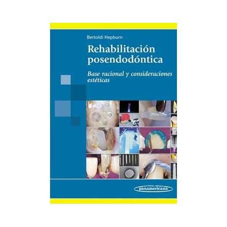 REHABILITACION POSENDODONTICA. BASE RACIONAL Y CONSIDERACIONES ESTETICAS